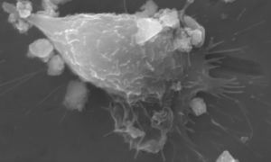 Untreated Implant Surface - Nano-Material and Nano-Particle Testing